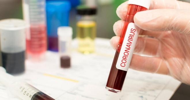 Koronavirüs aşısı bulundu mu, çalışmalar hangi aşamada?